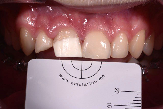 DentalDesign_Trauma_04