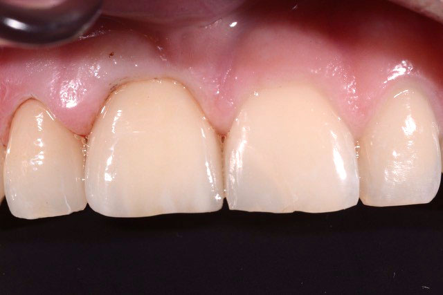 DentalDesign_Trauma_06