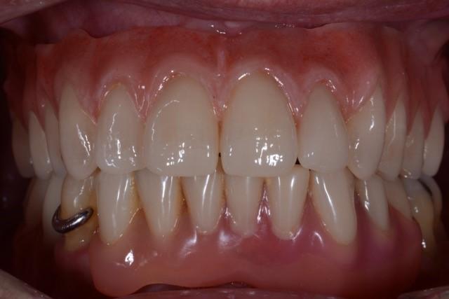 Zahnarzt_Wrobel_Geriatrische_Zahnheilkunde_03_Implantologie