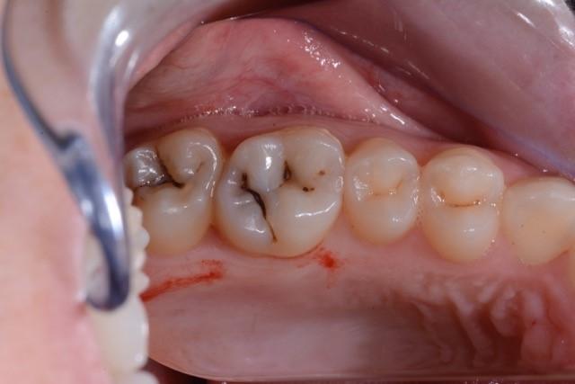 Zahnarzt_Wrobel_Konservierende_Zahnheilkunde_01