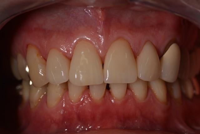 Zahnarzt_Wrobel_Konservierende_Zahnheilkunde_03_Nach_8_Jahren