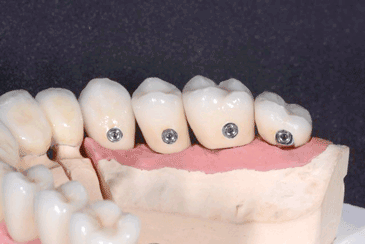 Verschraubte Kronen auf Implantaten
