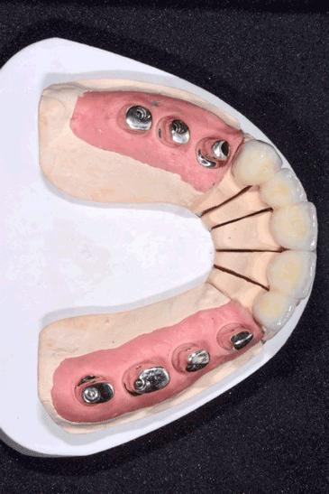 Verschraubte Kronen auf Implantaten 2